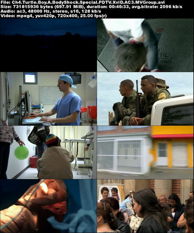 دانلود مستند پسر لاک پشتی Turtle Boy: A BodyShock Special 2012